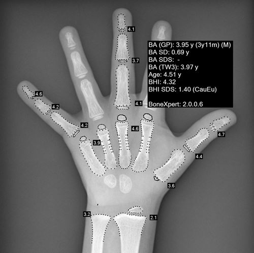 age osseux1