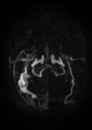Fistule durale avec le sinus lat+®ral droitEX20140807_0_SE20_IM6