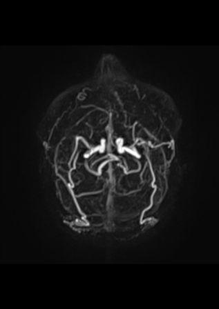 Fistule durale avec le sinus lat+®ral droitEX20140807_7_SE101_IM20